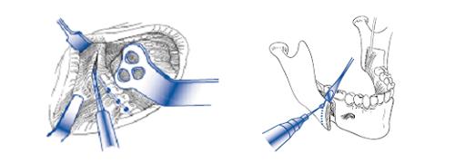 下顎枝矢状分割術の画像